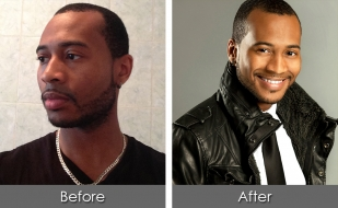 before-after-isaiah1