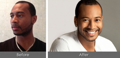before-after-isaiah2