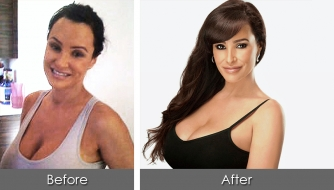 before-after-lisa-ann1